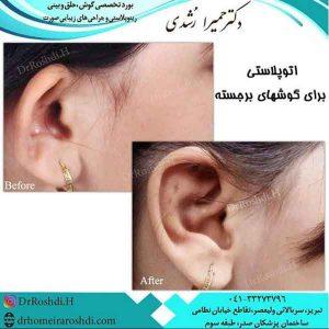 جراحی زیبایی و درمانی گوش