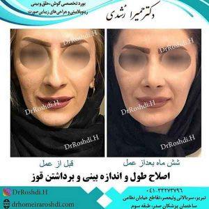 بهترین جراح بینی تبریز