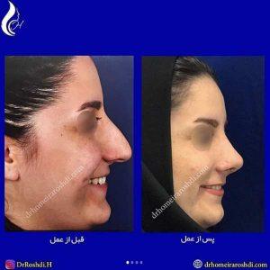 جراحی زیبایی بینی در تبریز
