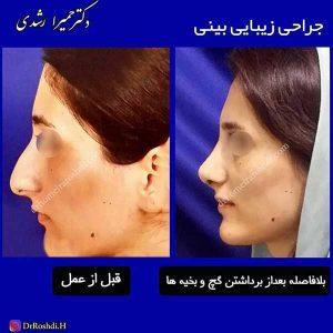 جراحی کردن بینی
