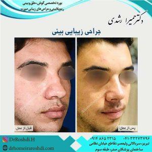 جراح بینی تبریز