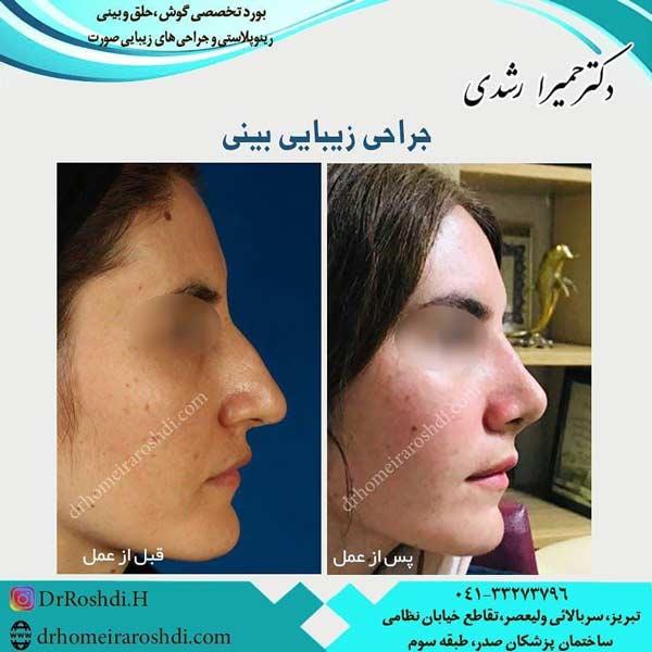 جراح بینی خوب در تبریز