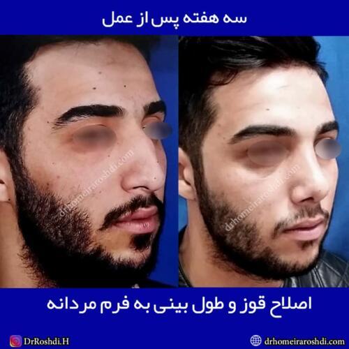 جراحی بینی تبریز 64