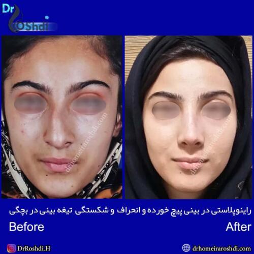 جراحی بینی تبریز 66