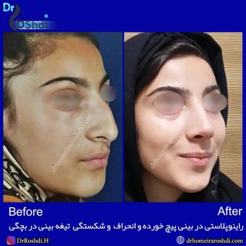 جراحی بینی تبریز 68