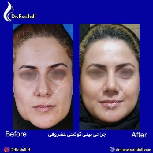جراحی بینی تبریز 70