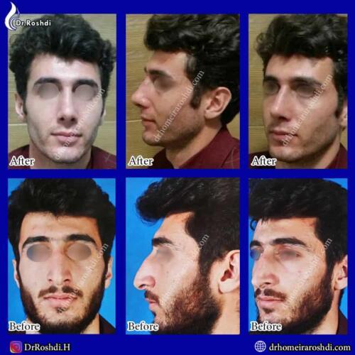جراحی بینی تبریز 77