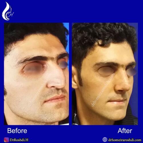 جراحی بینی تبریز 80