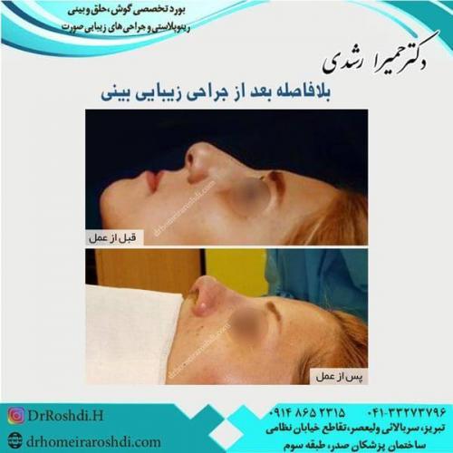 جراحی بینی 200
