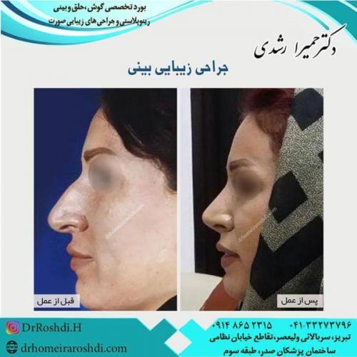 جراحی بینی 202
