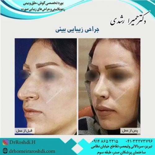 جراحی بینی 204
