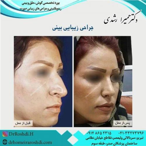 جراحی بینی 205