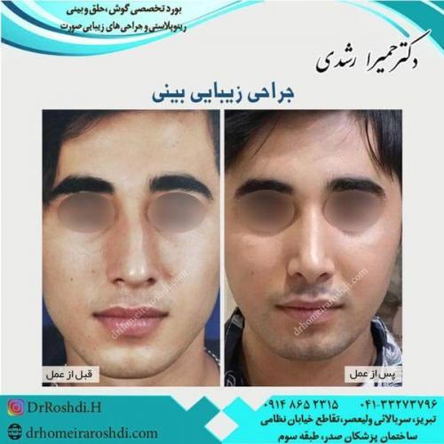 جراحی بینی 214