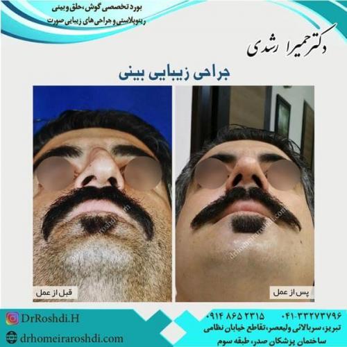 جراحی بینی 224