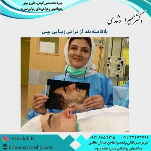 جراحی بینی 225