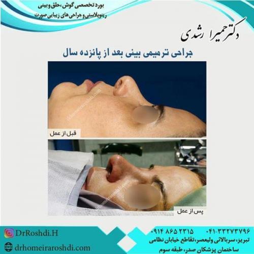 جراحی بینی 227