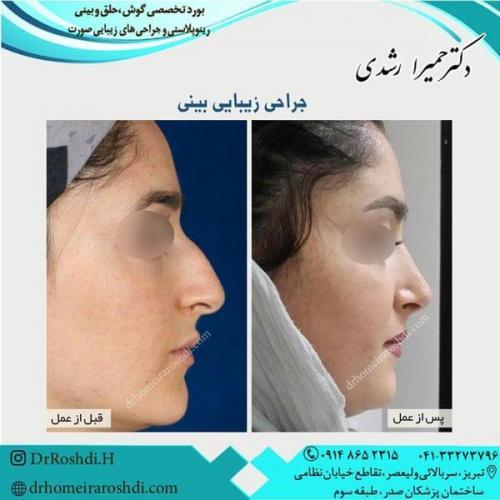 جراحی بینی 233