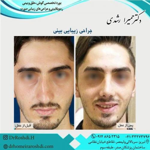 جراحی بینی 236