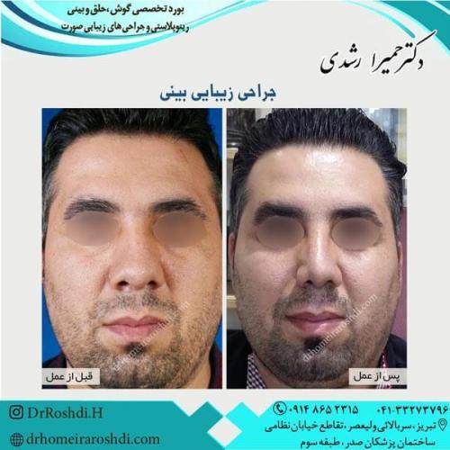 جراحی بینی 241