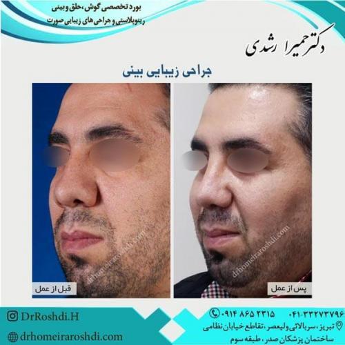 جراحی بینی 242
