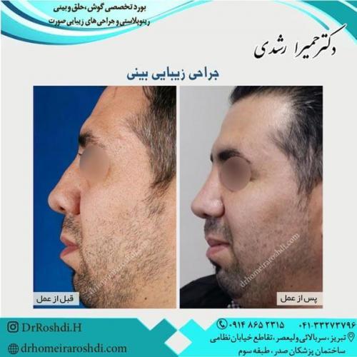 جراحی بینی 243