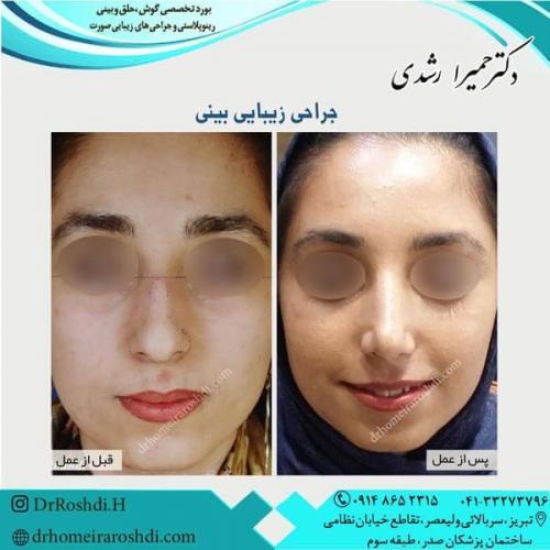 جراحی بینی 245