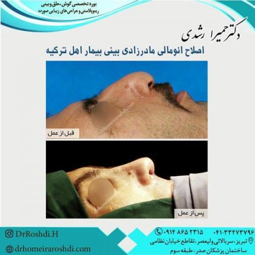جراحی بینی 2450