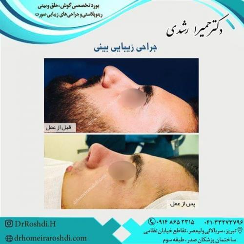 جراحی بینی 252