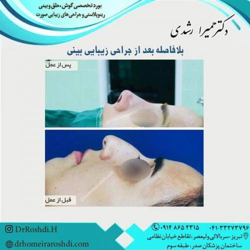جراحی بینی 255