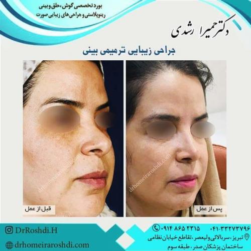جراحی بینی 257