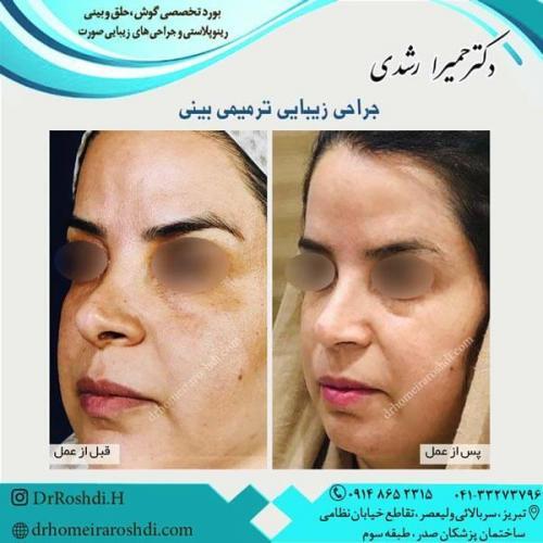 جراحی بینی 258