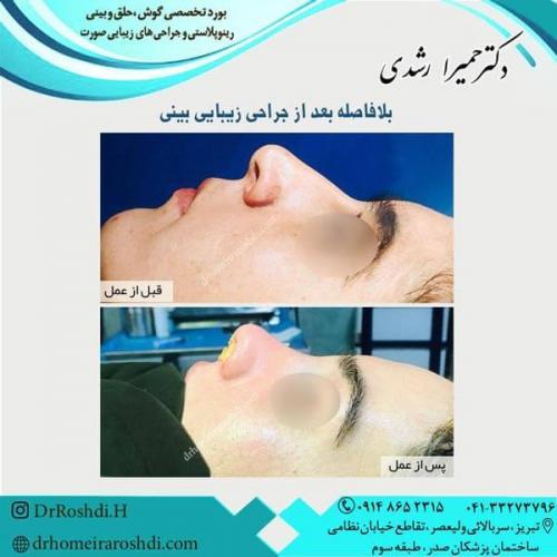 جراحی بینی 260