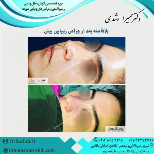 جراحی بینی 261