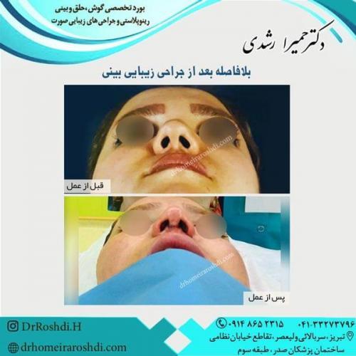 جراحی بینی 265
