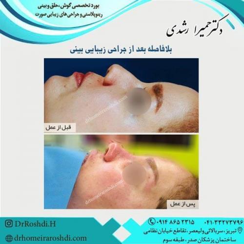 جراحی بینی 266