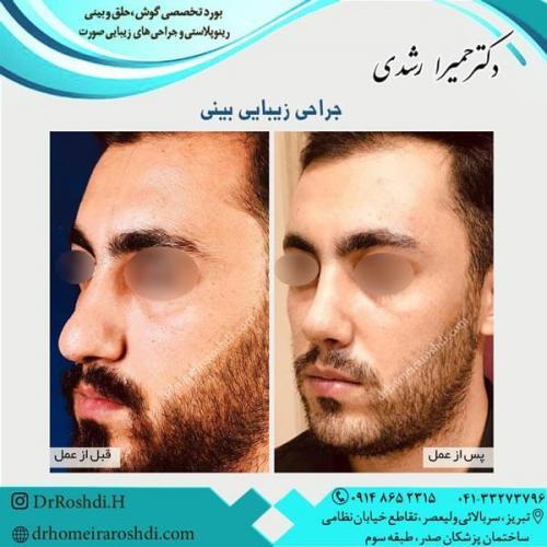 جراحی بینی 270