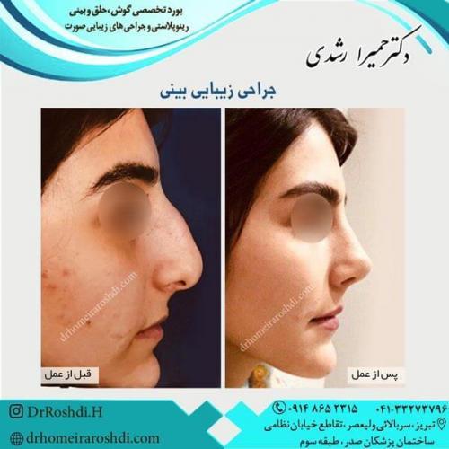 جراحی بینی 286