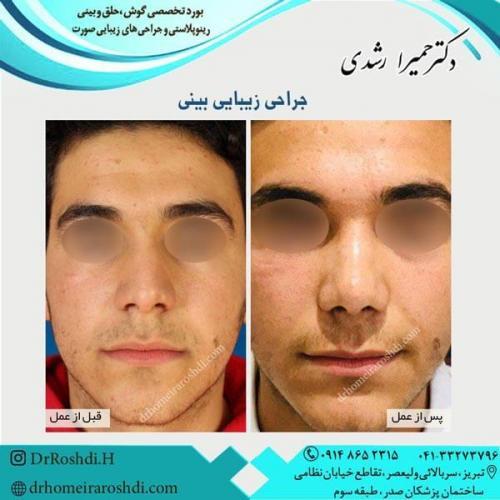 جراحی بینی 288