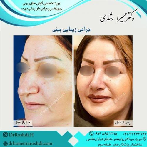 جراحی بینی 294