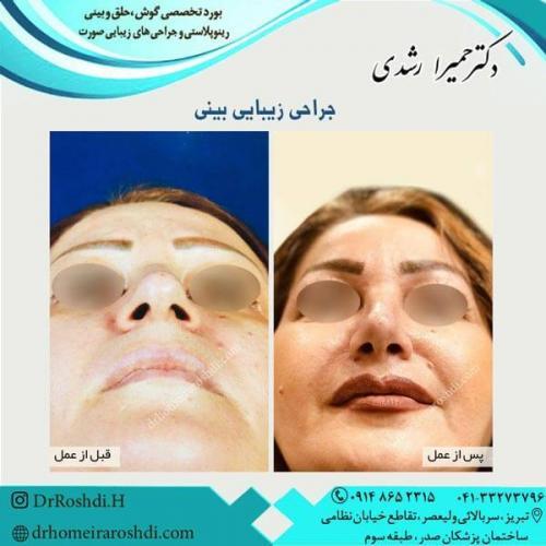 جراحی بینی 297