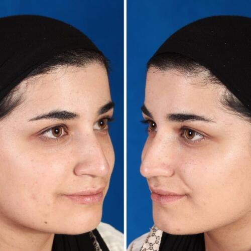 جراحی زیبایی بینی 310