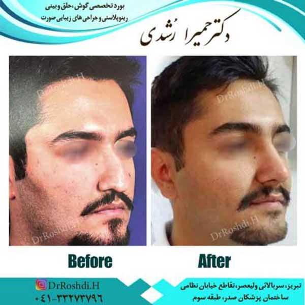 جراحی بینی در تبریز