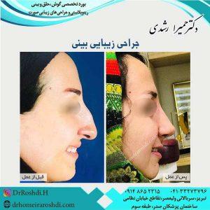 جراحی بینی تبریز