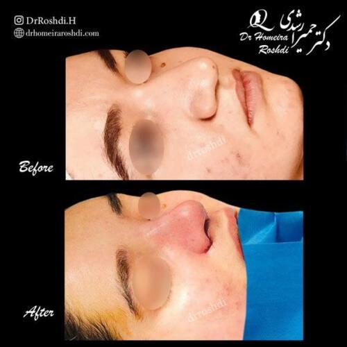 جراحی زیبایی بینی 301