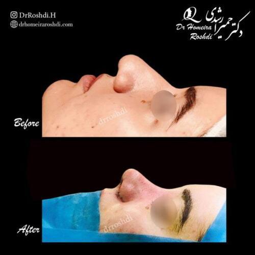 جراحی زیبایی بینی 302