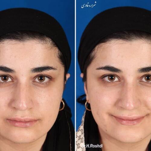 جراحی زیبایی بینی 309